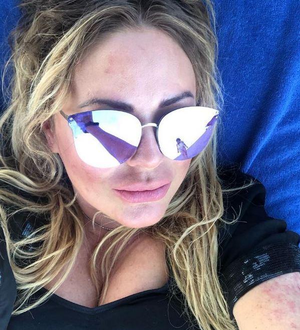 Юлия Началова на отдыхе покрылась красными пятнами. Фанаты не могут смириться с необратимыми изменениями когда-то былой красавицы